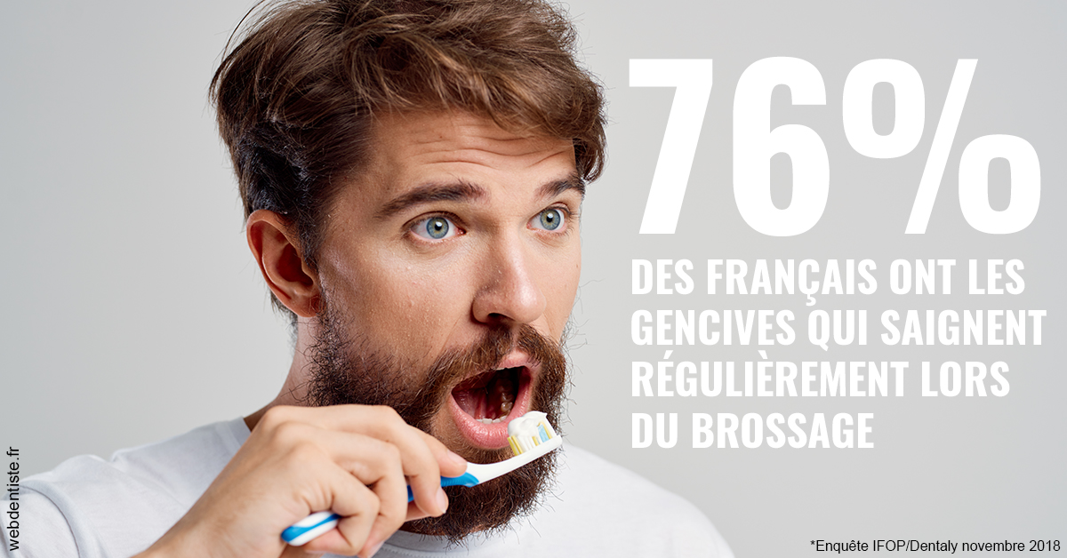 https://dr-acquaviva-cyril.chirurgiens-dentistes.fr/76% des Français 2