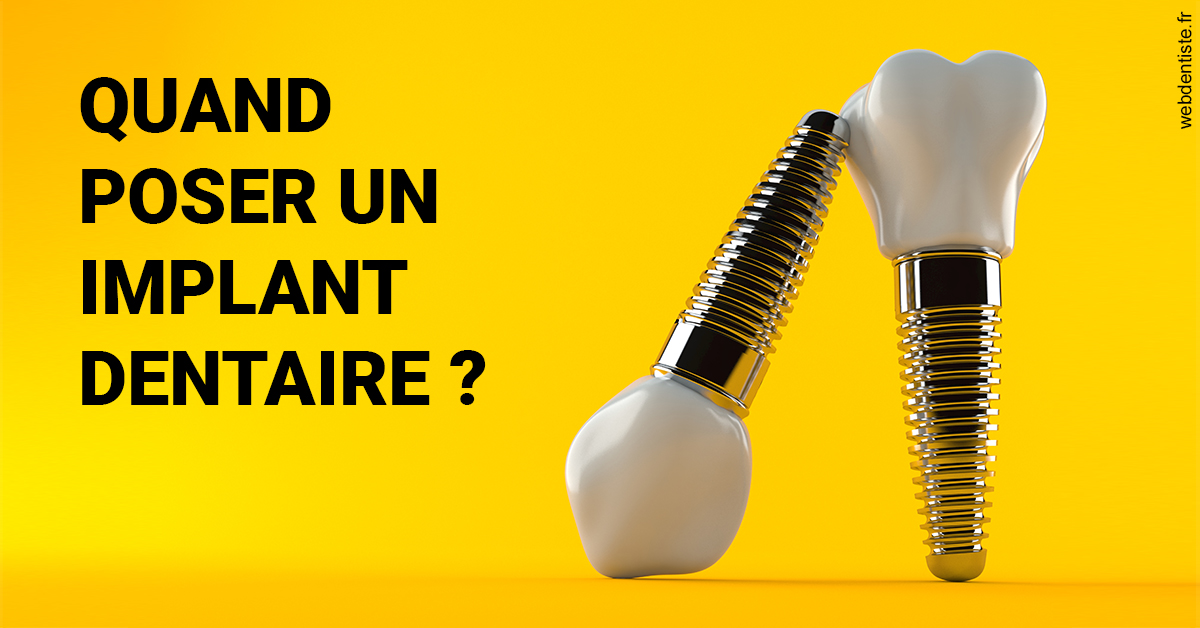 https://dr-acquaviva-cyril.chirurgiens-dentistes.fr/Les implants 2