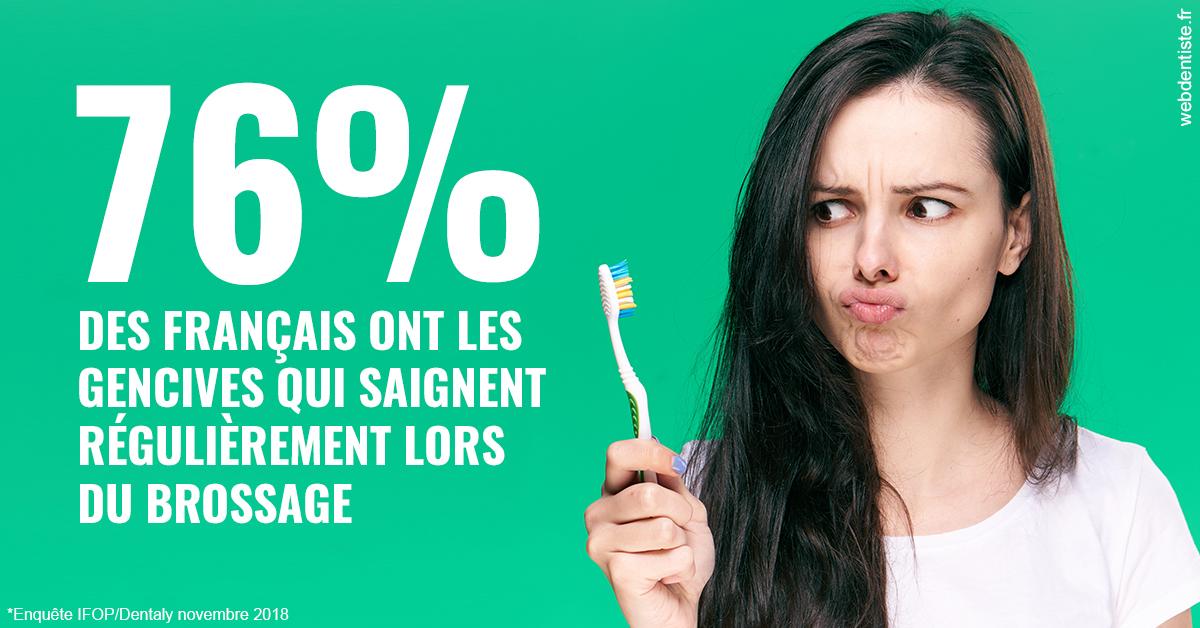https://dr-acquaviva-cyril.chirurgiens-dentistes.fr/76% des Français 1