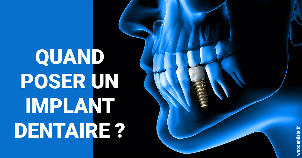 https://dr-acquaviva-cyril.chirurgiens-dentistes.fr/Les implants 1