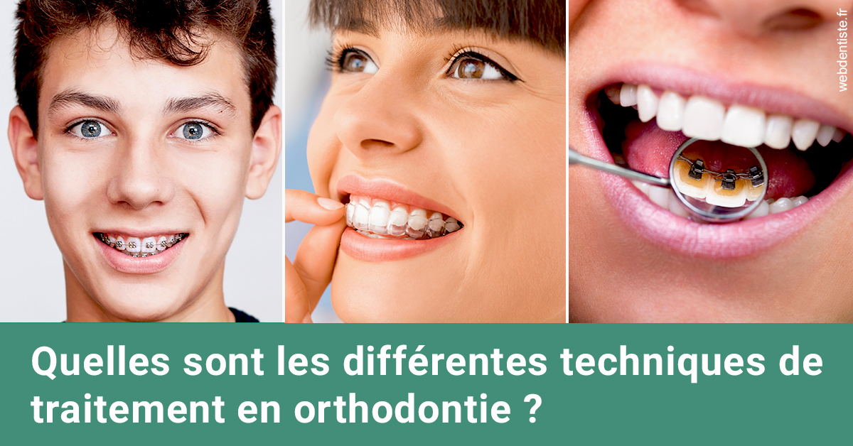 https://dr-acquaviva-cyril.chirurgiens-dentistes.fr/Les différentes techniques de traitement 2